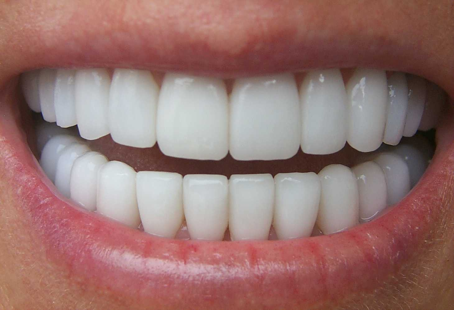 Porcelain veneers southport 10 dental a veneer is a thin tooth coloured shell which is carefully crafted to bond to and cover the front of unsightly teeth a veneer can be likened to a false solutioingenieria Gallery